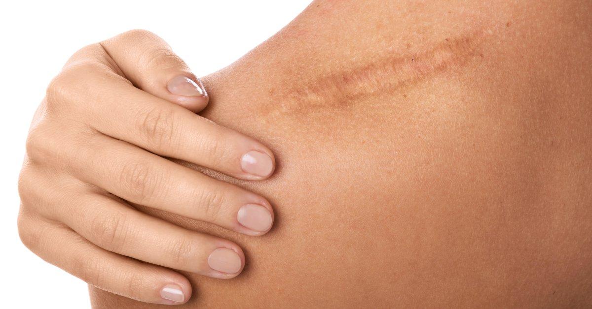 Zonele cu cicatrizare dificilă