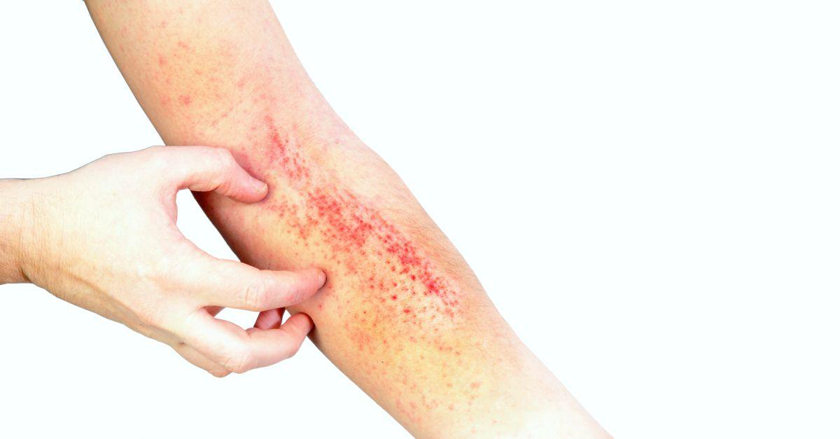 Dermatita maini crapate