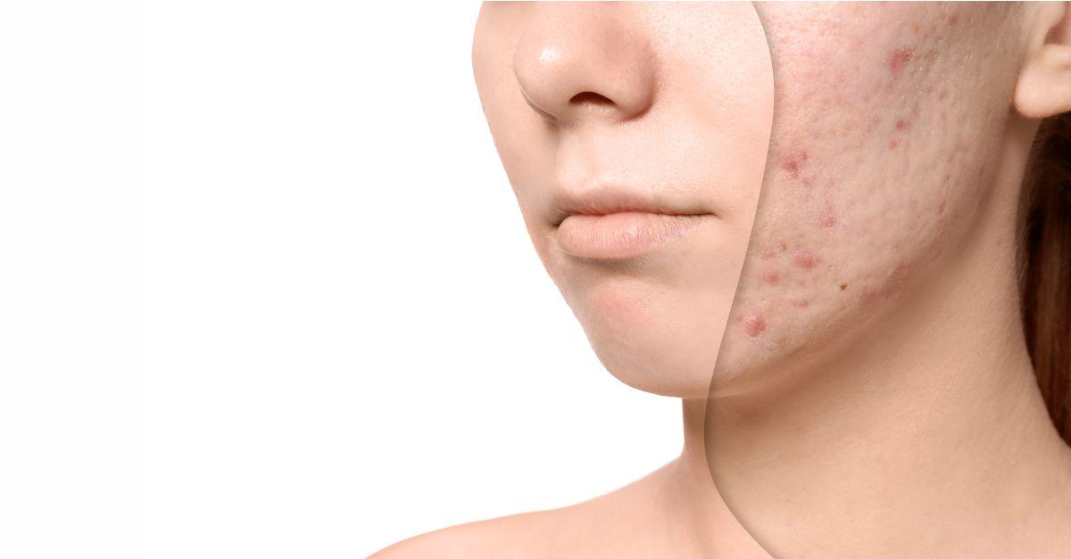 pierdere de grăsime cicatrici acnee