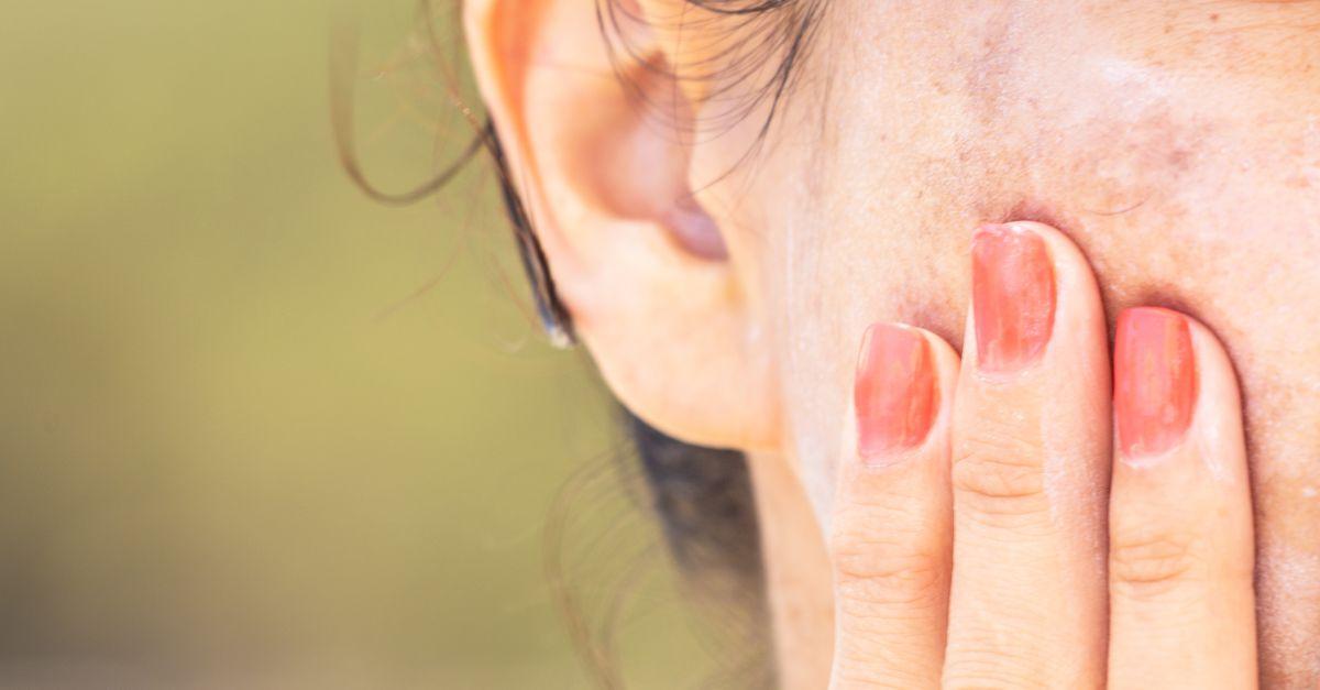 varicoză pigmentare a pielii