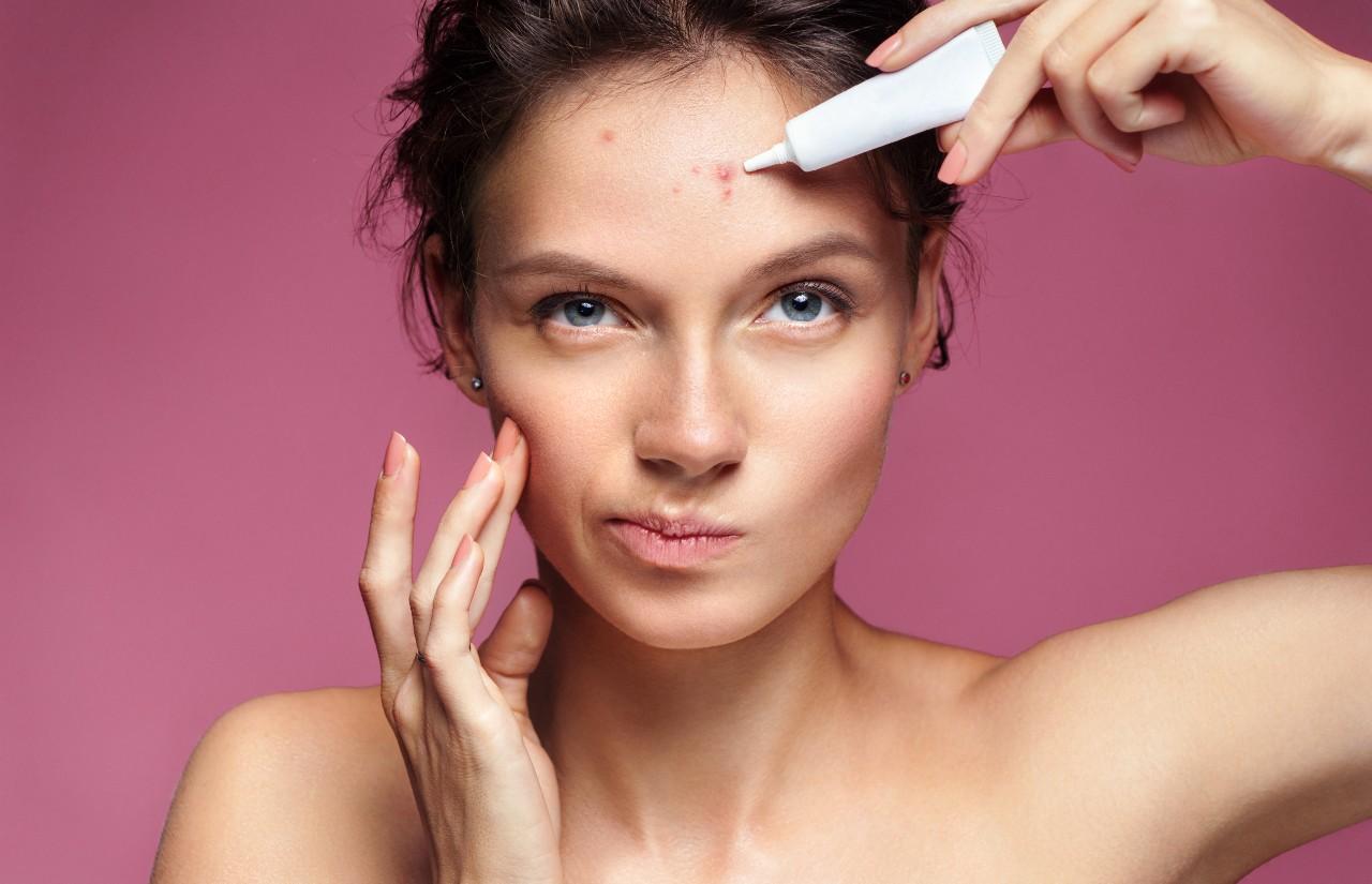 Tipuri de acnee, tratament Leventer