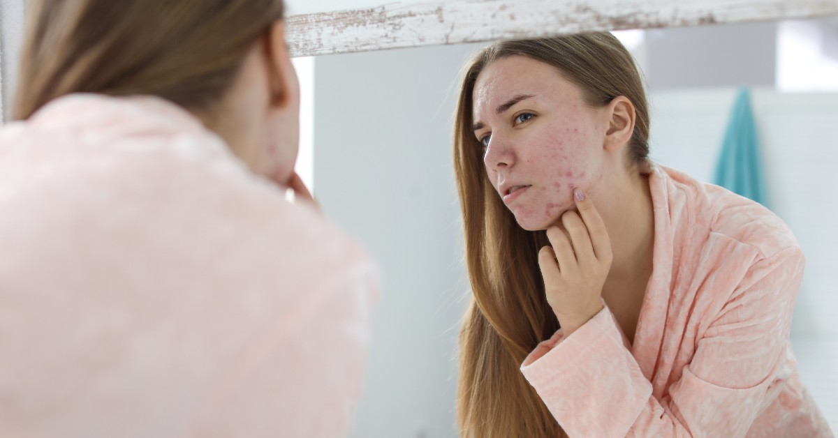 tratament acnee în funcție de tip de ten